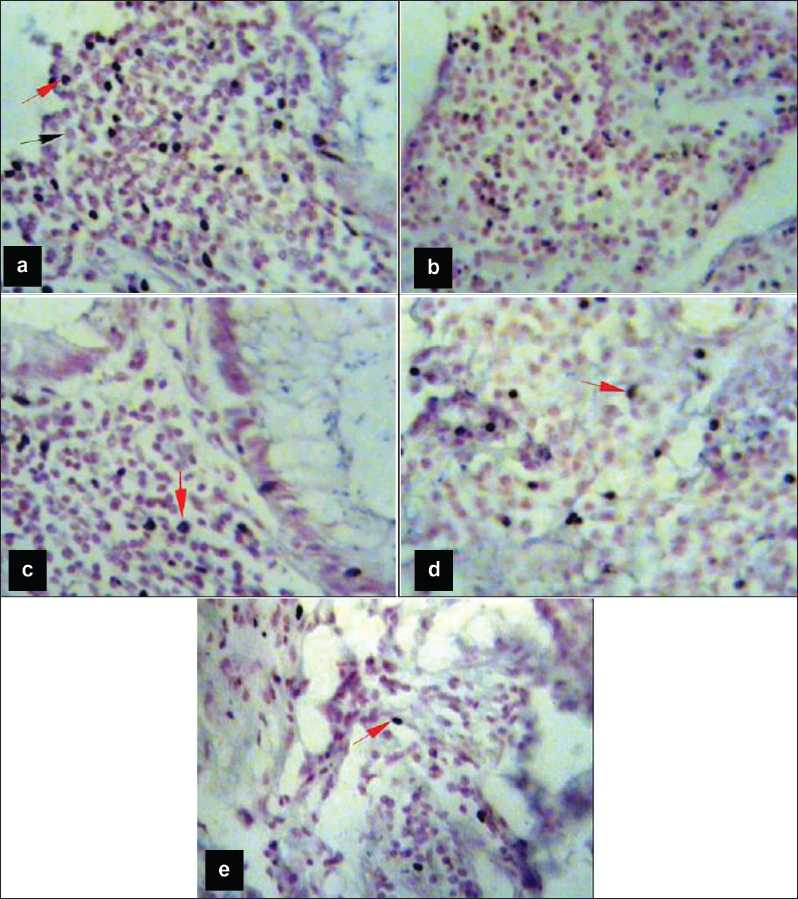 Figure 1: <i>In situ</i> hybridization for MMP-2 in colorectal tumor sections. Staining by BCIP/NBT (bluish-black) and counterstaining with nuclear fast red, red arrows show positive cells, whereas black arrows show negative cells. (a) Well-differentiated adenocarcinoma, Duke's stage A, number of stained cells (99%); (b) moderately differentiated adenocarcinoma, stage B (95%); (c) moderately differentiated adenocarcinoma, stage C (85%); (d) poorly differentiated adenocarcinoma, stage D (35%); (e) resection margin. Magnification power for a-e (&#215;400)