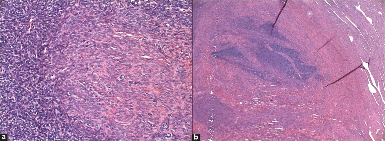 Figure 7: (a and b) Endometrial stromal nodule with smooth muscle metaplasia as seen in the center and right (a, H and E stain, ×200) and as seen on low power with a smooth interface with normal myometrium (H and E stain, ×40)