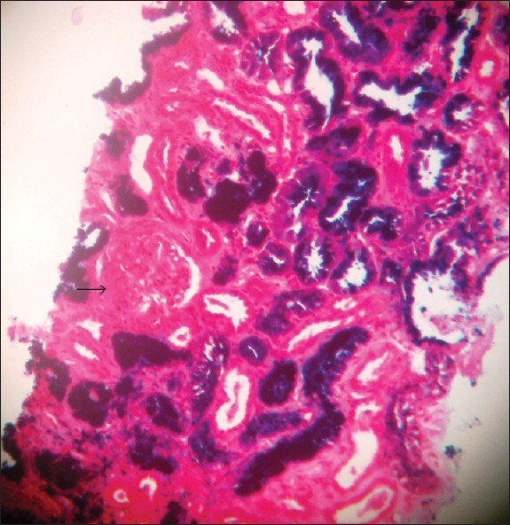 Figure 1: Renal biopsy: Prussian blue stain - Arrow showing glomeruli spared of the deposition (Prussian blue, ×200)