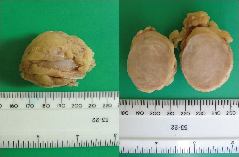 Figure 1: Well-circumscribed lump covered by remnants of adipose tissue (left); cut surface shows solid, white, whorled tissue without necrosis, bleeding or degeneration (right)