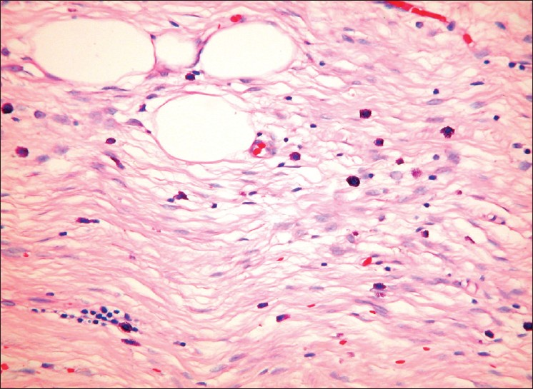 Figure 3: Highlighted fat lobules and scattered mast cells (Giemsa, ×100)