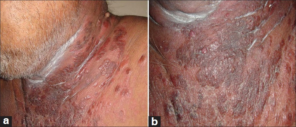 Figure 1: (a) Papules and plaques on the side of neck (b) and front of chest