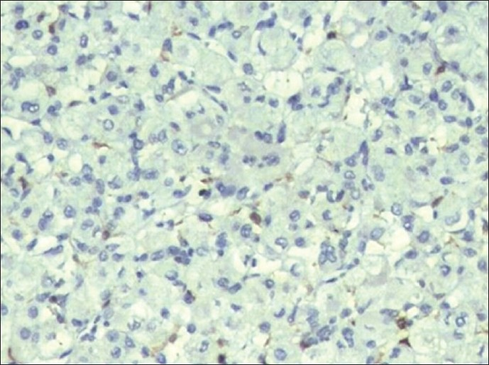 Figure 2: Immunohistochemical staining showing negative result for S 100