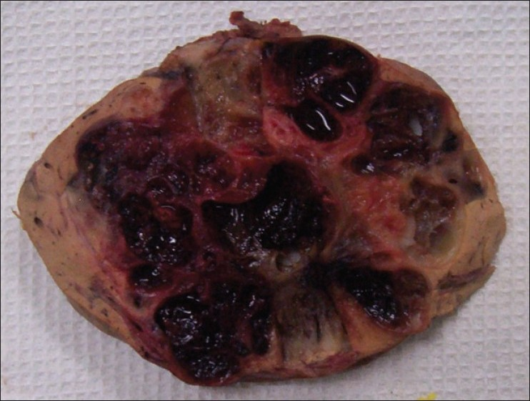 Figure 2: The cut surface of the liver glomus tumor