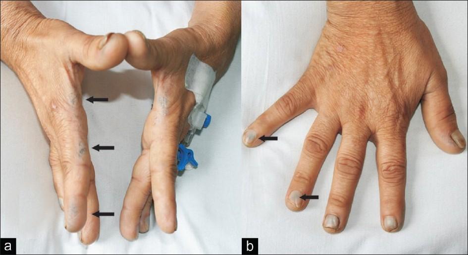 darkening of skin on hands