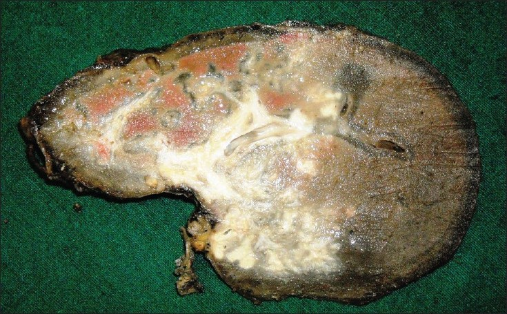 Figure 1: Gross specimen: Spleen showing multiple yellowish purulent areas containing sulfur granules with areas of dense fi brosis