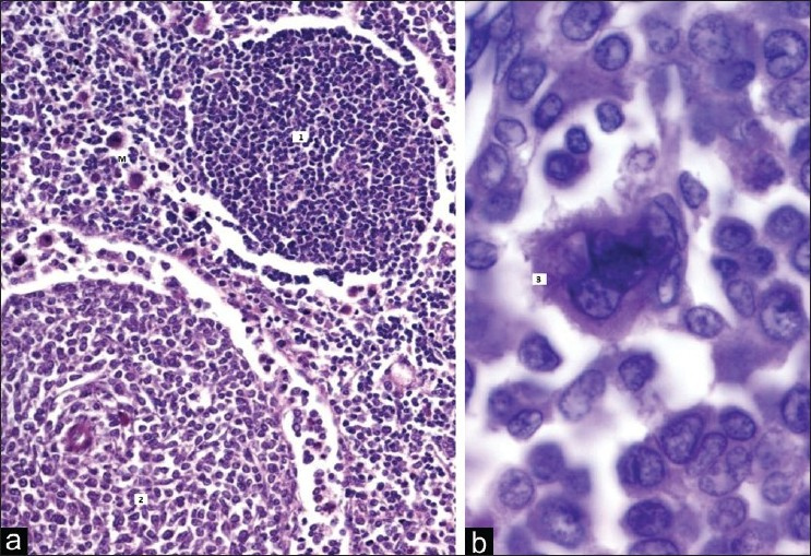 Figure 1: (a) Lymph node partly replaced by sheets of large atypical cells (marked as 2), Scattered megakaryocytoid cells are seen (M), Residual lymphoid cells are also seen (marked as 1) (H and E, ×40), (b) Multi - lobulated megakaryocytoid cell (marked as 3) surrounded by atypical cells with blastic morphology, (H and E, ×100)