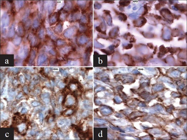 Figure 2: (a) Atypical cells of subcutaneous nodule showing LCA positivity (IHC, ×100), (b) Atypical cells of subcutaneous nodule showing MPO positivity (IHC, ×100) (c) Atypical megakaryocytoid cells of lymph node showing strong CD31 positivity (IHC, ×100), (d) Atypical cells of subcutaneous nodule showing CD43 positivity (IHC, ×100)