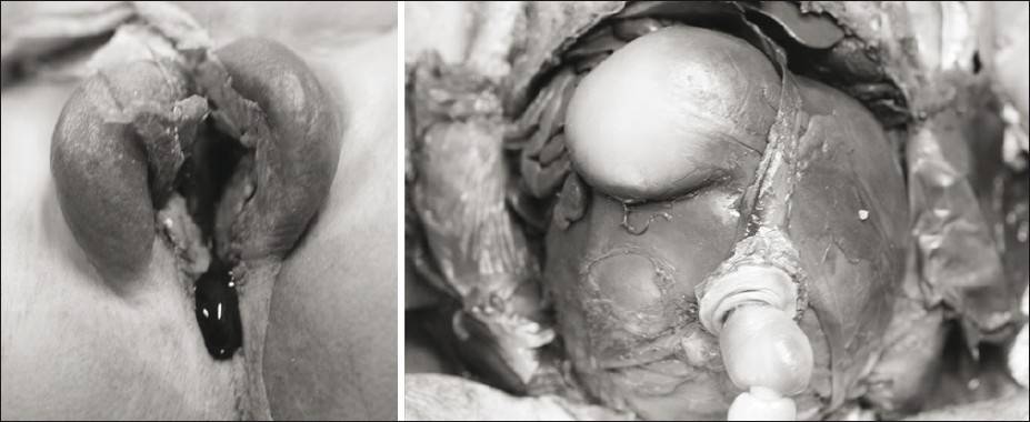 Figure 3: Left panel: External genitalia of the female type with rudimentary clitoris and labia minora. A single urethral orifice instead of a separate vaginal introitus and urethral ostium; ectopic but patent anal orifice. Right panel: Hydrometrocolpos
