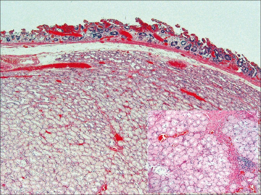 Figure 1: Duodenal congested mucosa and the submucosal location of Brunner's gland hamartoma. (H and E stain, x4) Inset showing glands and smooth muscle fibres in the septa (H and E stain, x10)