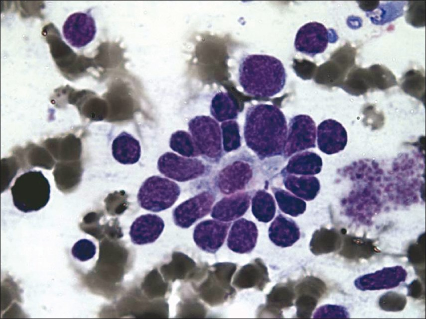 Figure 2: Rosettes with atypical cells showing moulding (MPO, x1000)