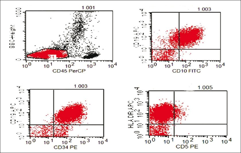 Figure 4: Immunophenotype of blasts as revealed by flow cytometry