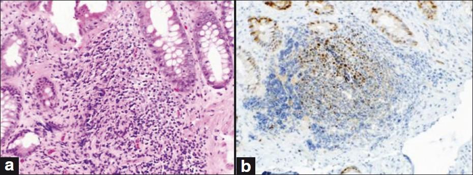 Lymphomas of the gastro-intestinal tract - Pathophysiology