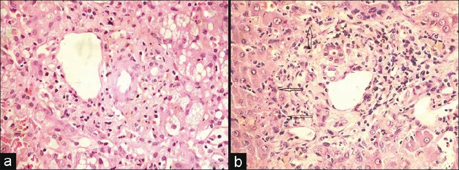 Histological and immunohistochemical features in fatal acute ...
