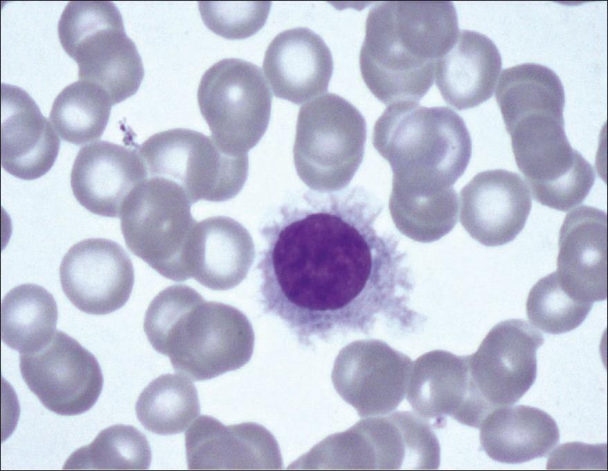 hairy cell leukemia case study Hairy cell leukemia (hcl) is a rare, chronic, b-cell lymphoproliferative disorder characterized by pancytopenia, splenomegaly, and constitutional symptoms 1 although hcl is an indolent disorder, most patients will require treatment at some point.