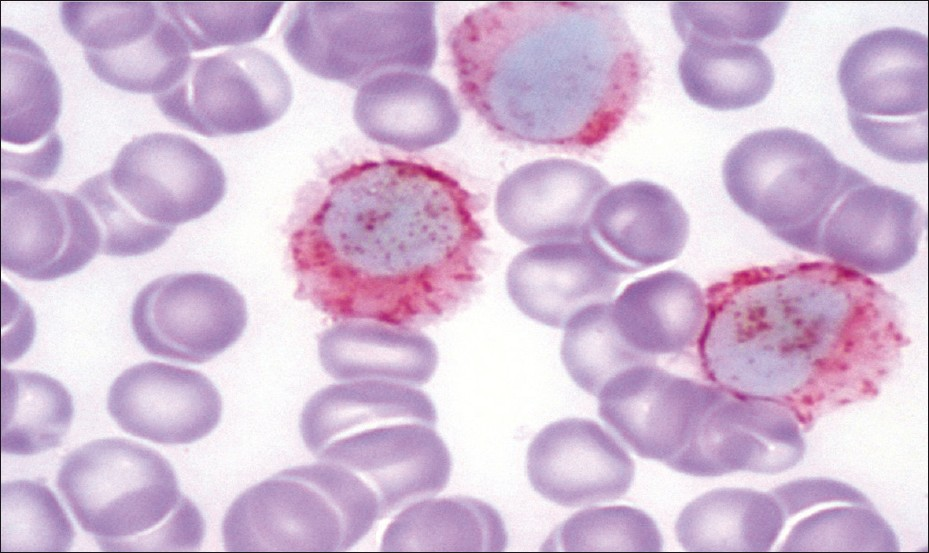 cell Hairy cell leukemia