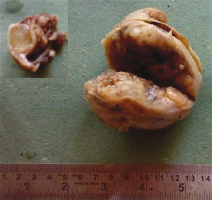 Figure 1: Gross photograph shows cut open well-circumscribed nodular tumor measuring 7 × 6 × 6 cm. Inset: A small gelatinous nodule measuring 1.5 × 1 × 1 cm within the fallopian tube wall