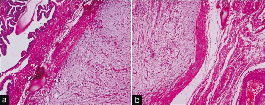 Figure 4: Photomicrograph shows well-circumscribed myxoid tumor with pseudocapsule limited within the fallopian tube wall. (a) Luminal aspect. (b) Serosal aspect (H and E, ×40)