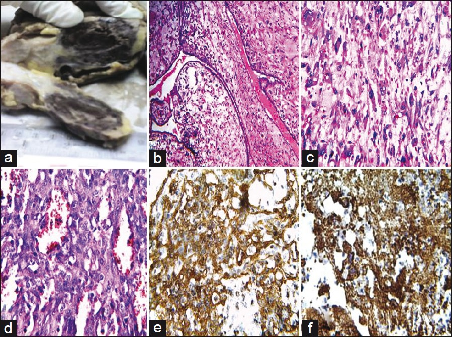 Figure 1: (a) Resected tumor showing greyish white and hemorrhagic areas. (b) Leaf like projections, characteristic of phyllodes tumor (hematoxilin and eosin stain, ×200). (c) Marked nuclear atypia in stromal tissue (hematoxilin and eosin stain, ×400). (d) focal stromal area showing anastomosing vascular channels & marked nuclear. Atypia (hematoxilin and eosin stain, x400). (e) Angiosarcomatous foci positive for CD34 (IHC, x400). (f) Angiosarcomatous foci positive for CD31 (IHC, ×400)
