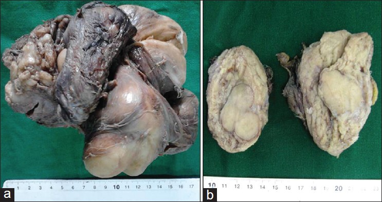 Figure 4: Low-grade DDLS with meningothelial like whorls and metaplastic bone formation. (Case 23). (a) Gross appearance displaying multinodular tumor. (b) Cut surface showing multilobulated tumor with grey-white and yellowish/