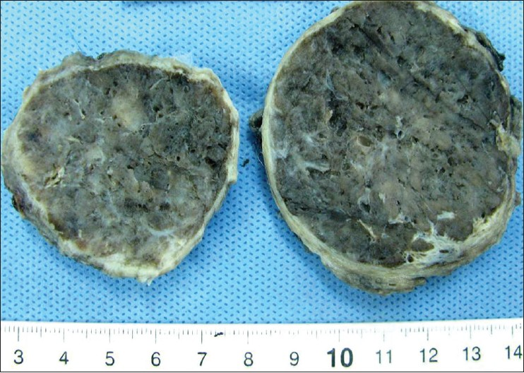 Figure 1: Gross Findings. Well-circumscribed, encapsulated tumor measuring 7 cm in diameter with a tan-brown cut surface and focal translucent areas