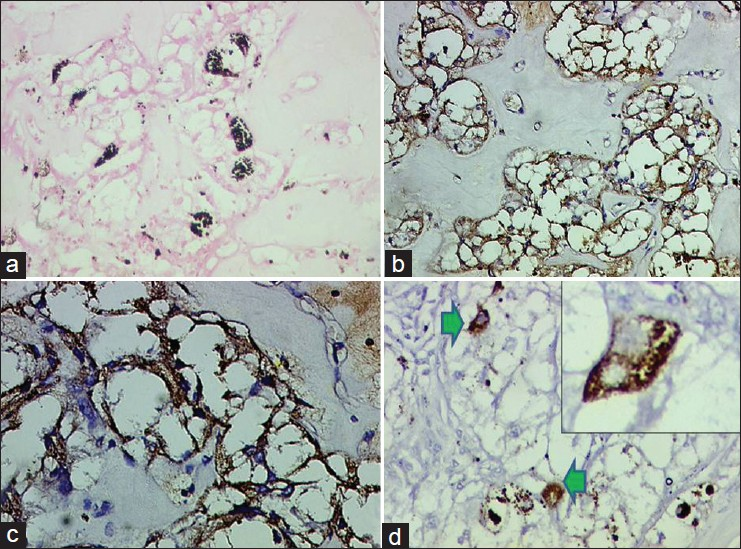 Figure 3: (a) Positive staining for melanin pigment within tumor cells embedded in a dense sclerotic stroma. Masson Fontana ×200. (b) Diff use HMB-45 positive tumor cells. (Diaminobenzidine, ×200). (c) HMB-45 positivity within tumor cells, on higher magnifi cation (Diaminobenzidine, ×400). (d) Focal desmin positivity within tumor cells (arrow heads). DAB ×200. Inset showing discrete tumor cells positive for desmin. (Diaminobenzidine, ×400)