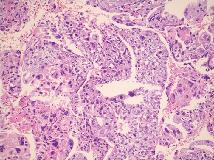 Figure 3: Tissue biopsy of the resected mass shows typical choriocarcinoma with extensive necrosis (Hematoxylin and eosin, ×250)