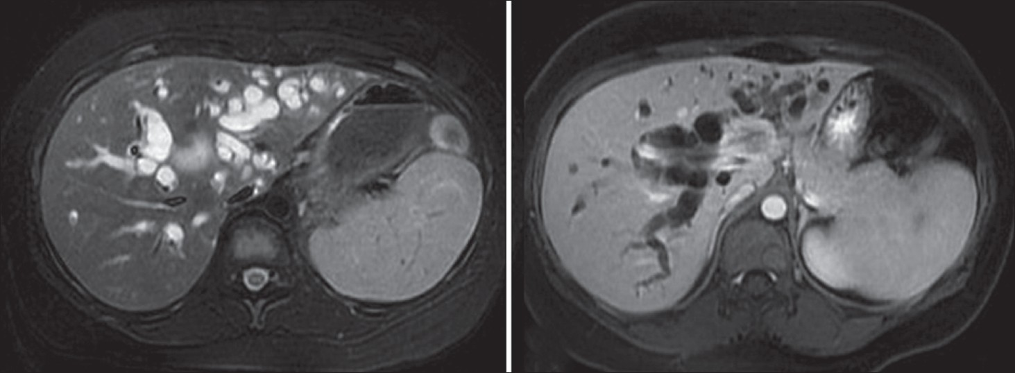 Figure 1: (a, b) MRI of the liver showing lesion at the confl uence of the right and left hepatic ducts with extension into the left duct