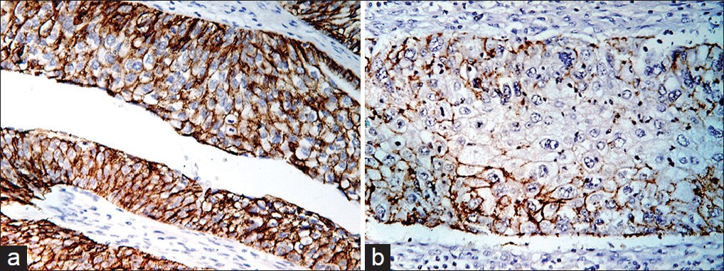 Figure 2: (a) Strong membranous E-cadherin positivity in tumor cells in high-grade muscle-invasive urothelial cancer (IHC, ×400). (b) Focal reduced E-cadherin expression in high-grade muscle-invasive urothelial cancer (IHC, ×400)
