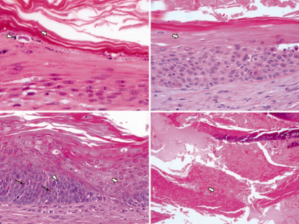 Figure 2: Histopathologic findings. (hematoxylin and eosin stain, ×200) (Above, left) Infundibular differentiation, laminated keratin (arrow), and keratohyaline granule (arrow head), (Above, right) Isthmic differentiation, trichilemmal differentiation with no or scarce keratohyaline granular layer (arrow), (Below, left) Pilomatrix differentiation, inner sheath differentiation with red trichohyaline granule (eosinophilic globule, arrow), matrical differentiation with basophilic small basaloid cell (arrow head), and melanocyte (thin black arrow) (Below, right) Pilomatrix differentiation, shadow cells (arrow) with sign of matrical differentiation