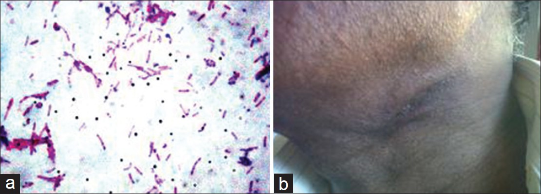 Figure 2: (a) Gram's stain - bipolar picture (Gram's, ×1000). (b) clinical picture after treatment