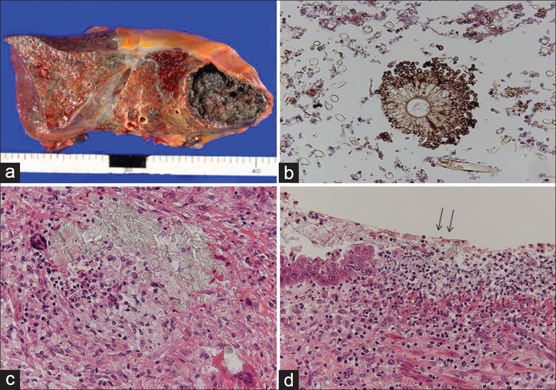 Figure 2: (a) Cut section of the right lung. The upper lobe shows a cavity filled with blackish- brown contents; (b) a fruiting head with blackish-brown pigment of Aspergillus within the cavity (H and E, ×400); (c) calcium oxalate crystals, foreign body-type giant cells, and inflammatory cells in the lung tissue adjoining the cavity (H and E, ×200]; (d) erosive bronchial epithelium with calcium oxalate crystals (arrows) (H and E, ×200)