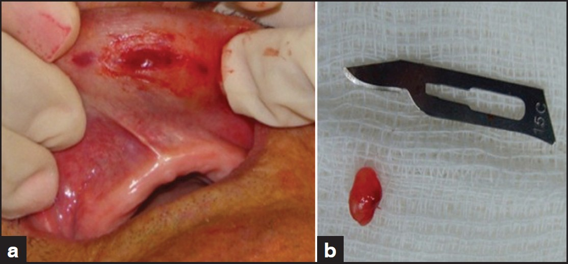 Figure 2: Excisional biopsy. Removal of the lesion with the affected salivary gland duct, final aspect (a) and specimen (b)