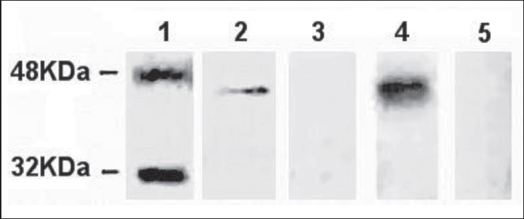 Figure 1: The immunity identification of recombination Sap2 (rSap2). Protein was separated by 12% sodium dodecyl sulfate — polyacrylamide gel electrophoresis and was transferred onto a nitrocellulose membrane. Immunized serum, negative serum, candidiasis serum and normal serum were used to react with protein. The results showed that the recombinant protein can be recognized by antibody in immunized serum and candidiasis serum. However, no antibody in negative serum and normal serum can react with rSap2. Lane 1, marker; lane 2, rSap2 protein against candidiasis serum; lane 3, rSap2 against normal serum; lane 4, rSap2 protein against immunized serum; lane 5, rSap2 protein against negative serum