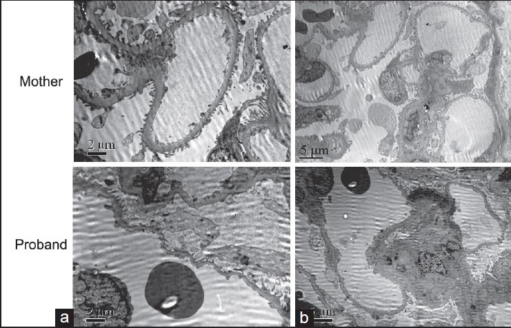 Figure 2: The representati ve pictures of electron microscopic analysis of the renal tissues. (a) (×4000); (b) (×8000)