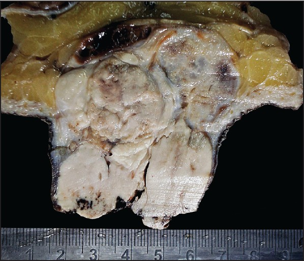 Figure 1: Gross photograph of the lesion showing solid lobulated subcutaneous mass showing skin ulceration, grey white, bluish translucent and gritt y areas with a single hemorrhagic area in the deep subcuti s