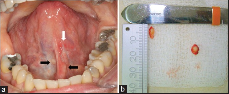 Figure 1: Excisional biopsy of the lesions located on the left side was performed (white arrows) and clinical appearance of lesions not biopsied (black arrows) (Fig. 1a). The surgical specimen was sent for histopathologic examinati on (Fig. 1b)
