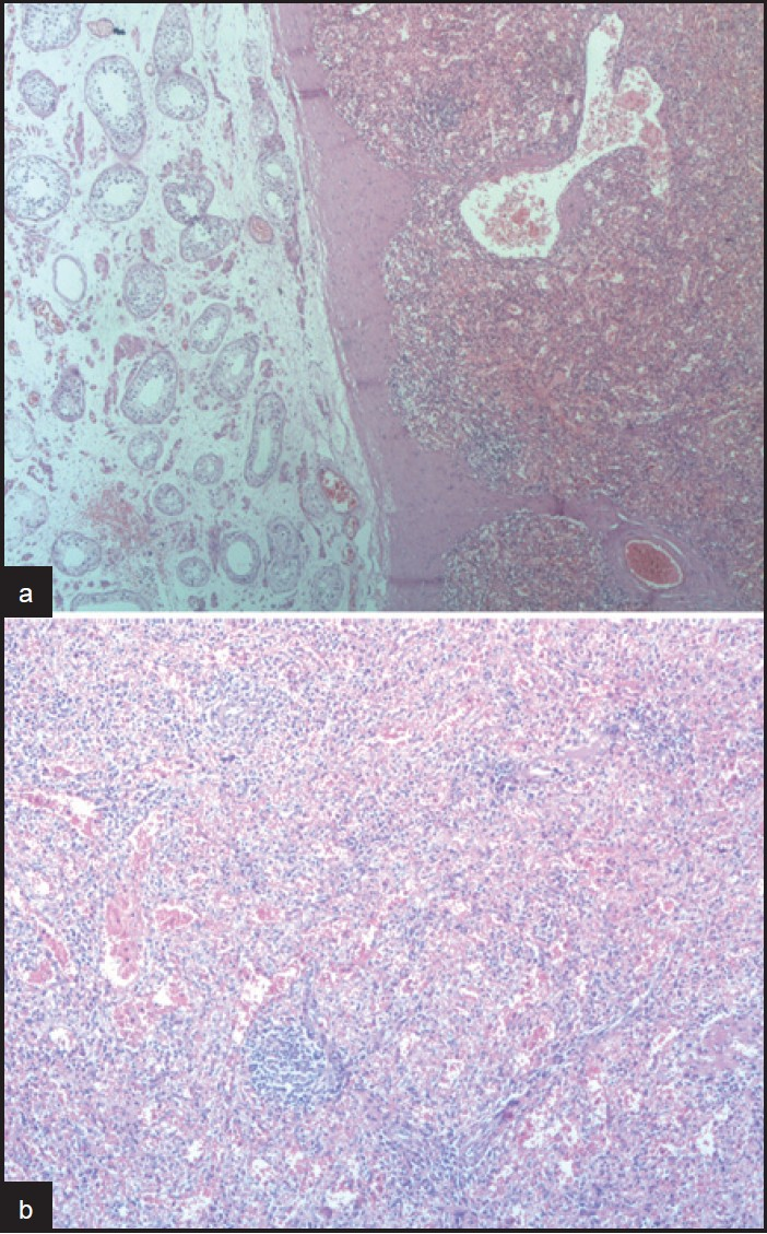 Figure 2: (a) Microscopic examinati on showing atrophic testi cular parenchyma adjacent to splenic ti ssue (H and E, ×100). (b) View of the splenic ti ssue (H and E, ×100)