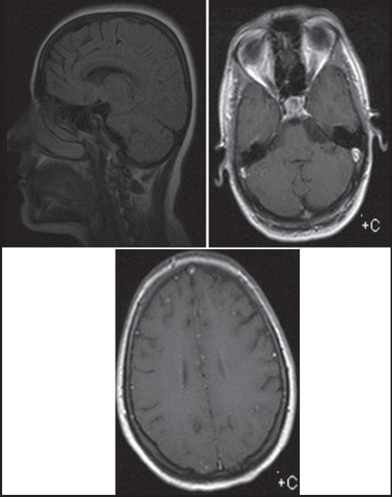 Figure 2: In magneti c resonance imaging, lesions, as described in Figure 1, were disappeared aft er 3 years