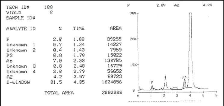 Figure 2: Hb variant chromotograph on variant II classic showing ...