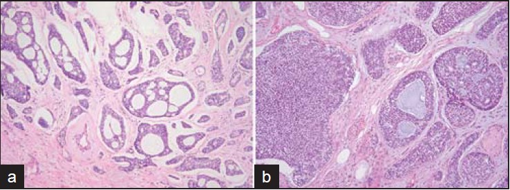Figure 1: (a) Case 1: The tumor shows cribriform and tubular pattern (H and E, ×100). (b) Case 2: Focal solid architecture is identified (H and E, ×100)