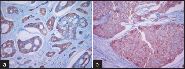 Figure 3: (a) Luminal epithelial cells of cribriform and tubular pattern show strong C-kit expression (×200). (b) Solid nests of tumor show weak C-kit immunoreactivity in both basaloid cells and epithelial cells (×200)