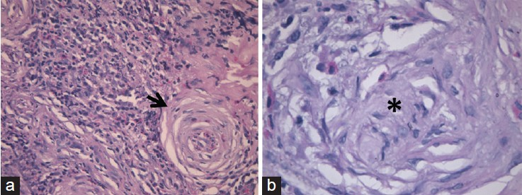 Figure 3: Histopathological photomicrograph showing (a) fibrocollagenous tissue with perivascular exudates of eosinophils accompanied by extensive areas of perivascular fibrosis (arrow) showing a characteristic angiocentric whirling with an onion skin pattern. (b) Higher magnification revealed complete obliteration of the vessel lumen with dense surrounding fibrosis (asterix)