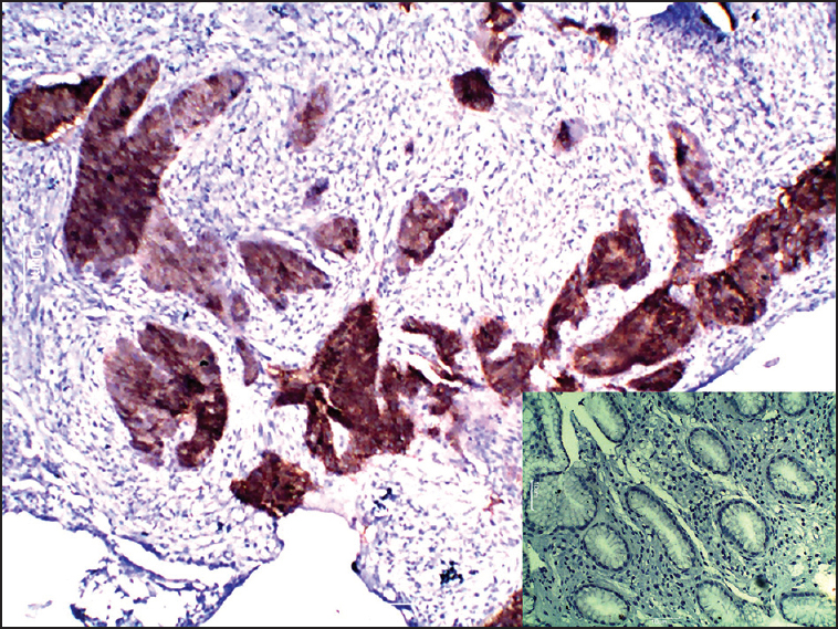 Figure 2: Positive human epidermal growth factor receptor 2 (HER-2)/neu immunostaining (3+) in gastric adenocarcinoma (H and E, ×400). <i>Inset</i> <i>-</i>Normal gastric mucosal glands are negative for HER-2/neu immunostaining (H and E ×400)