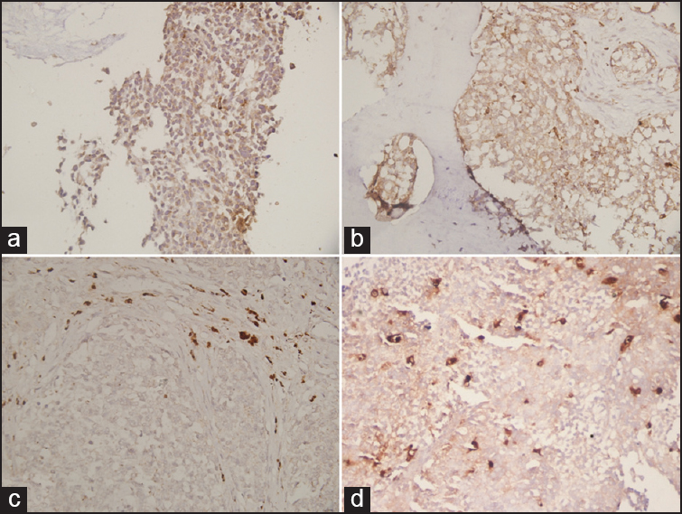 Figure 1: Cytoplasmic staining of tumor cells in Ewing sarcoma family of tumor patients with Cathepsin L (IHC, ×40) (a and b). Strong Cathepsin L positivity of tumor-associated macrophage on immunohistochemistry (×40) (c and d)