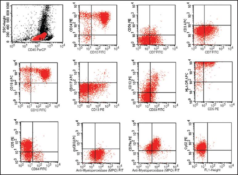 Flow cytometric analysis of Mixed phenotype acute leukemia
