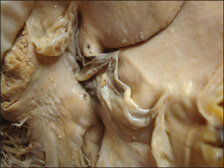 Figure 4: Opened up aortic valve showing myxomatous degeneration of its cusps