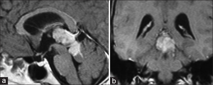 Figure 4: (a) (left) Sagittal and coronal (b) (right) T1W MR image after IV administration of Gd- DTPA revealed well defined irregular heterogeneously enhancing lesion in the region of the pineal gland effacing the posterior aspect of the third ventricle and compressing the quadrigeminal plate, without causing hydrocephalus