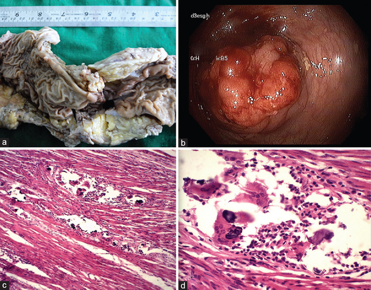 Figure 1: (a) Gross hemicolectomy specimen, (b) Colonoscopy of Growth, (c) Thickened muscle layer with brownish parasite eggs, (d) High power view of egg with spur and giant cell