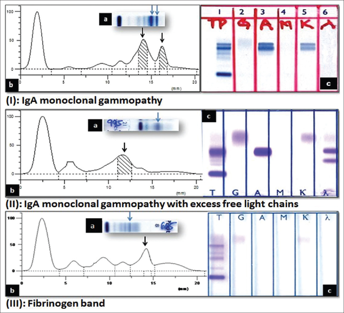 Figure 2: I   (a) Serum Protein Electrophoresis: Two Bands In Gamma Region;  (b) Densitometer Tracing: Two Sharp Peaks In Gamma Region; (c)  Immunofixation ...